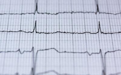 Herzrasen + Herzstolpern